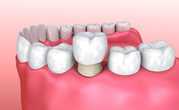 Dental Crowns Improve The Look of Damaged Teeth!